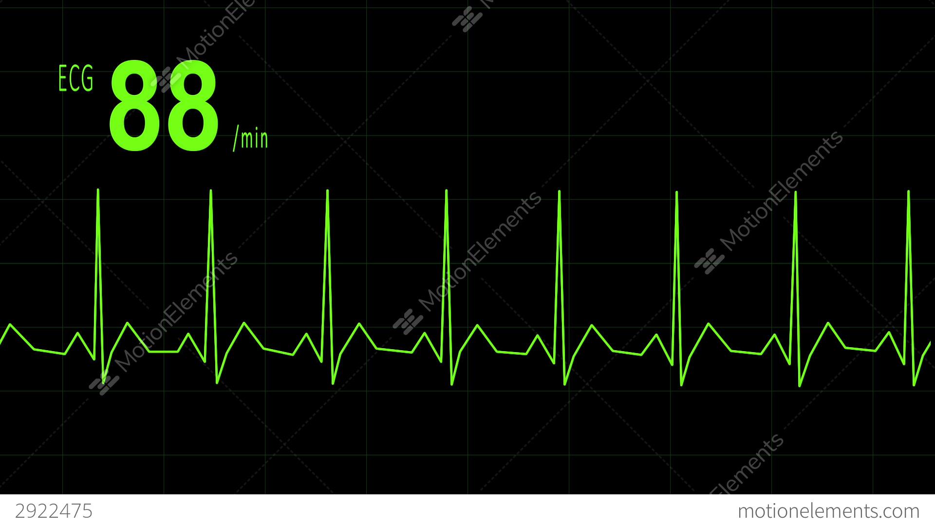 Ekg Heartbeat Image