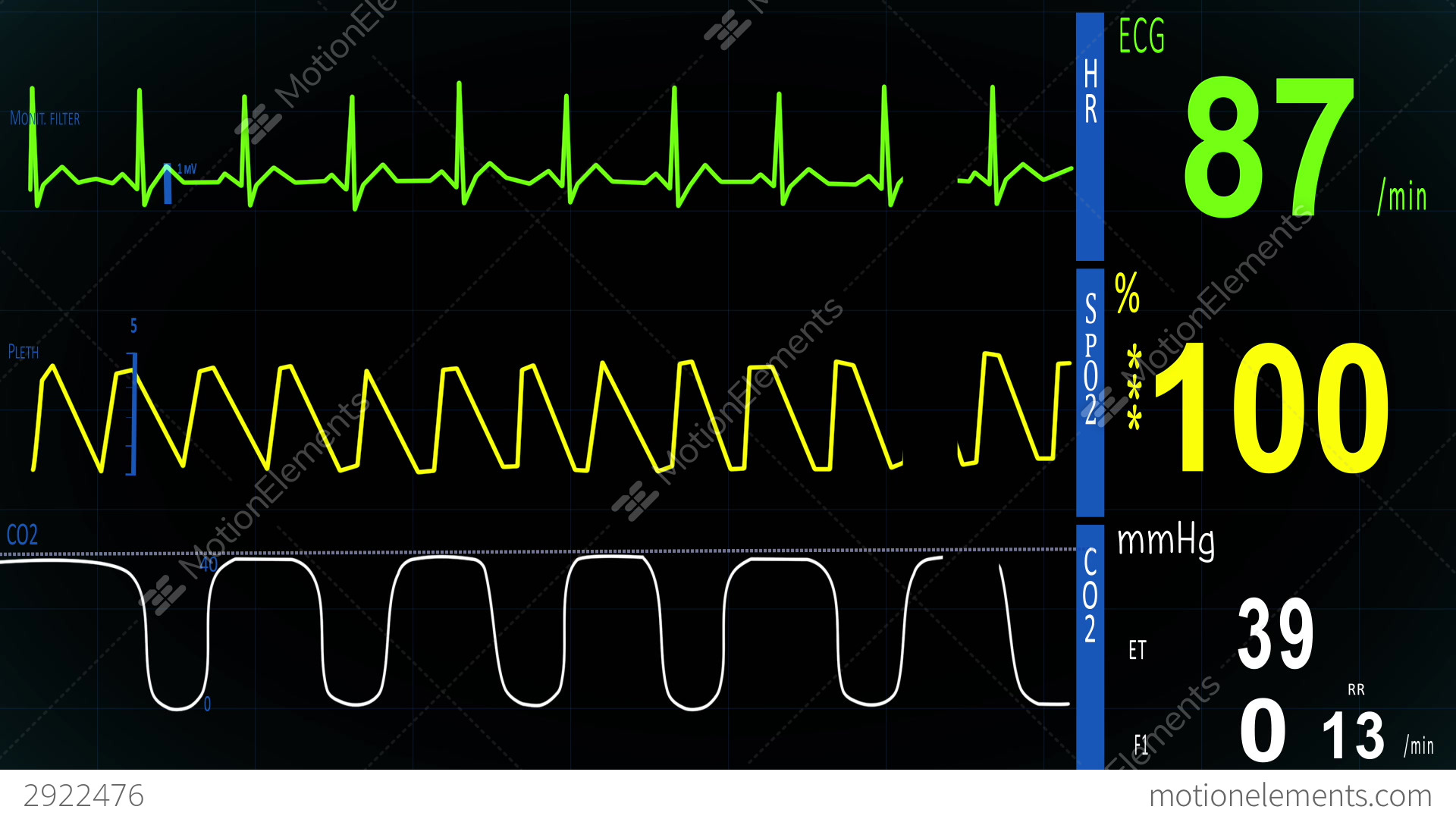 heart rate monitor hospital how to read