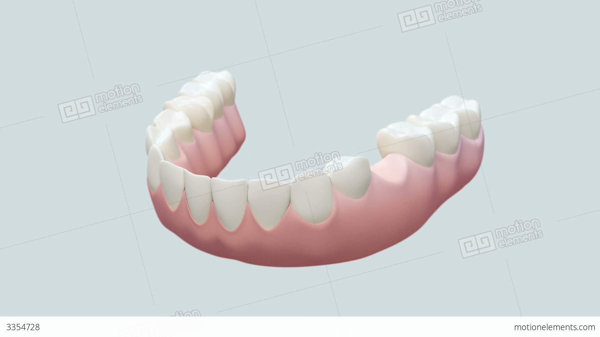 Dental Implant Bright Stock Animation   3354728