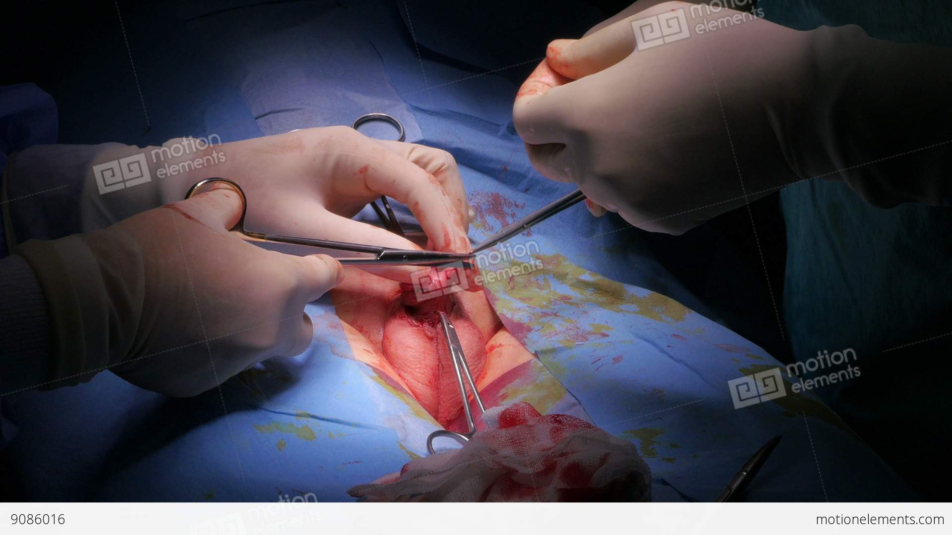 Circumcision Surgery Operation Of A Boy In Hospital Surgeon Room Stock ...