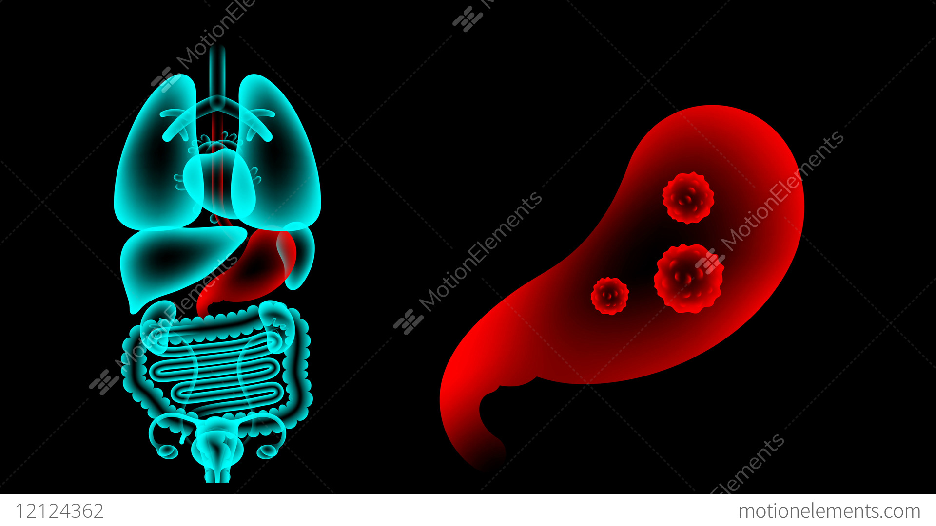 Human Female Organs X Ray Set Stomach Infection Concept Idea Red