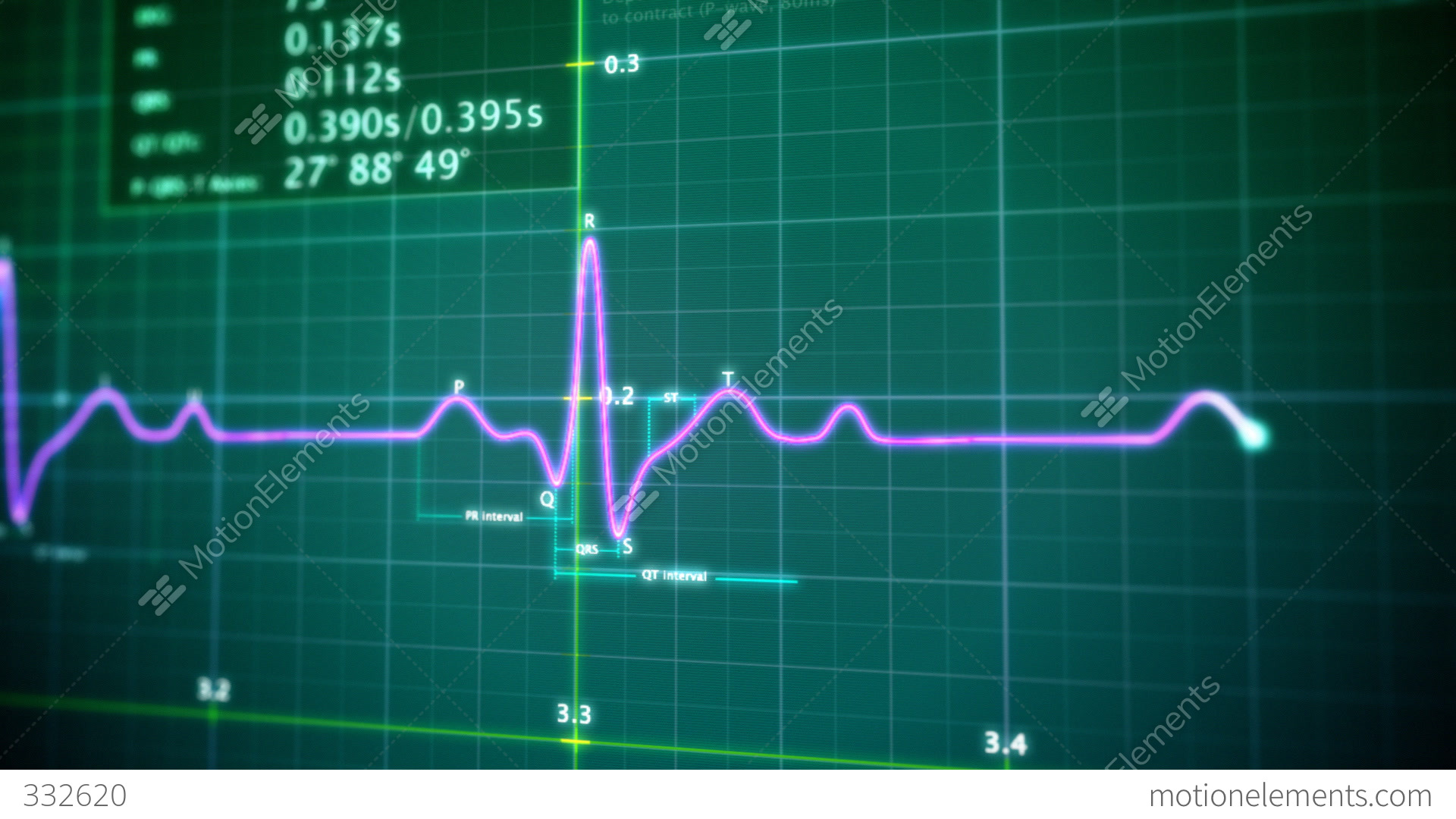 EKG Monitor Loop Stock Animation 332620