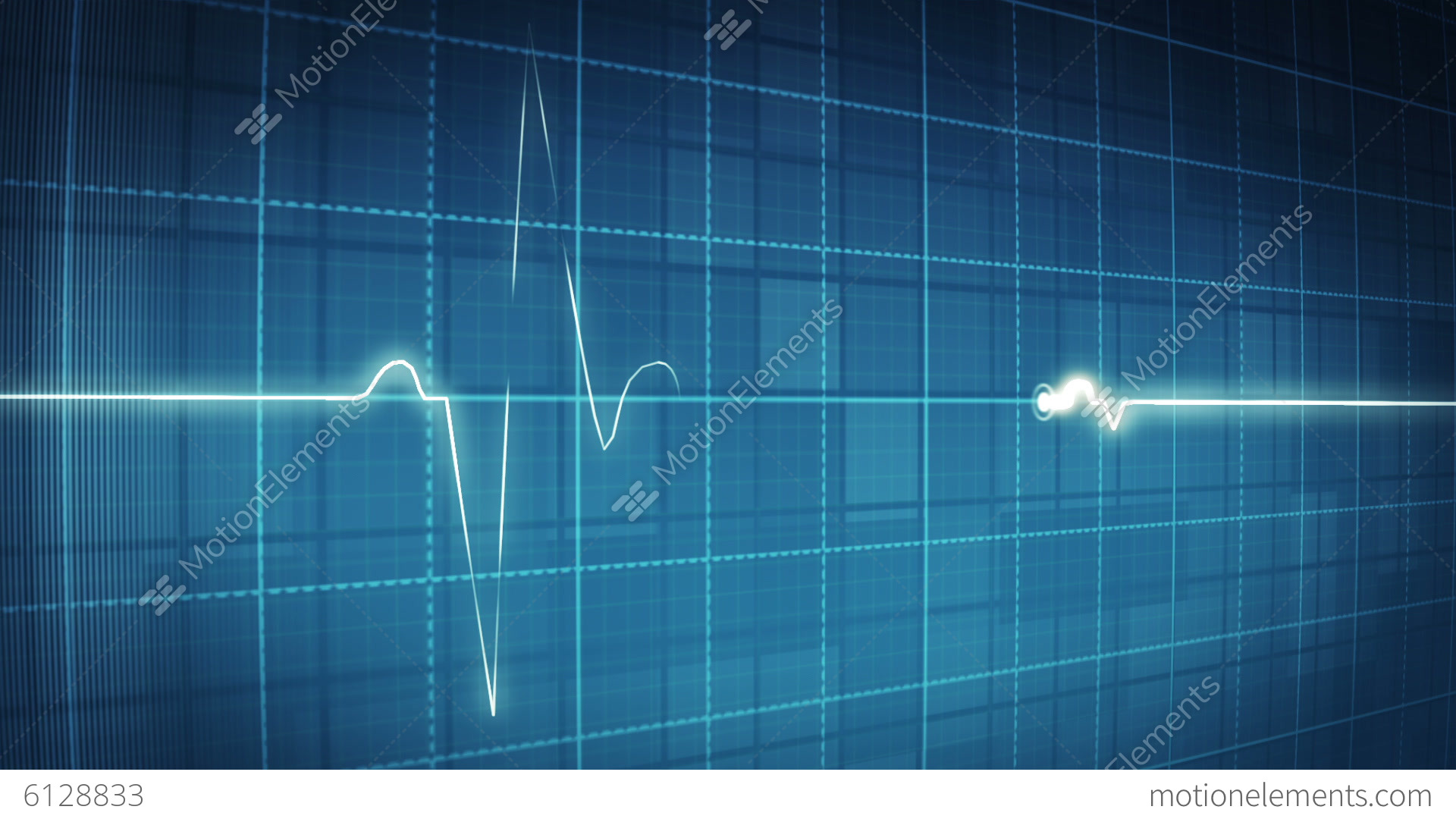 electrocardiogram An ecg (electrocardiogram) records the electrical activity of your heart at rest usually, you do not need an ecg if you don't have risk factors for heart disease.